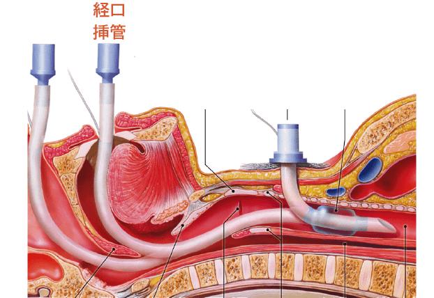 口径気管挿管