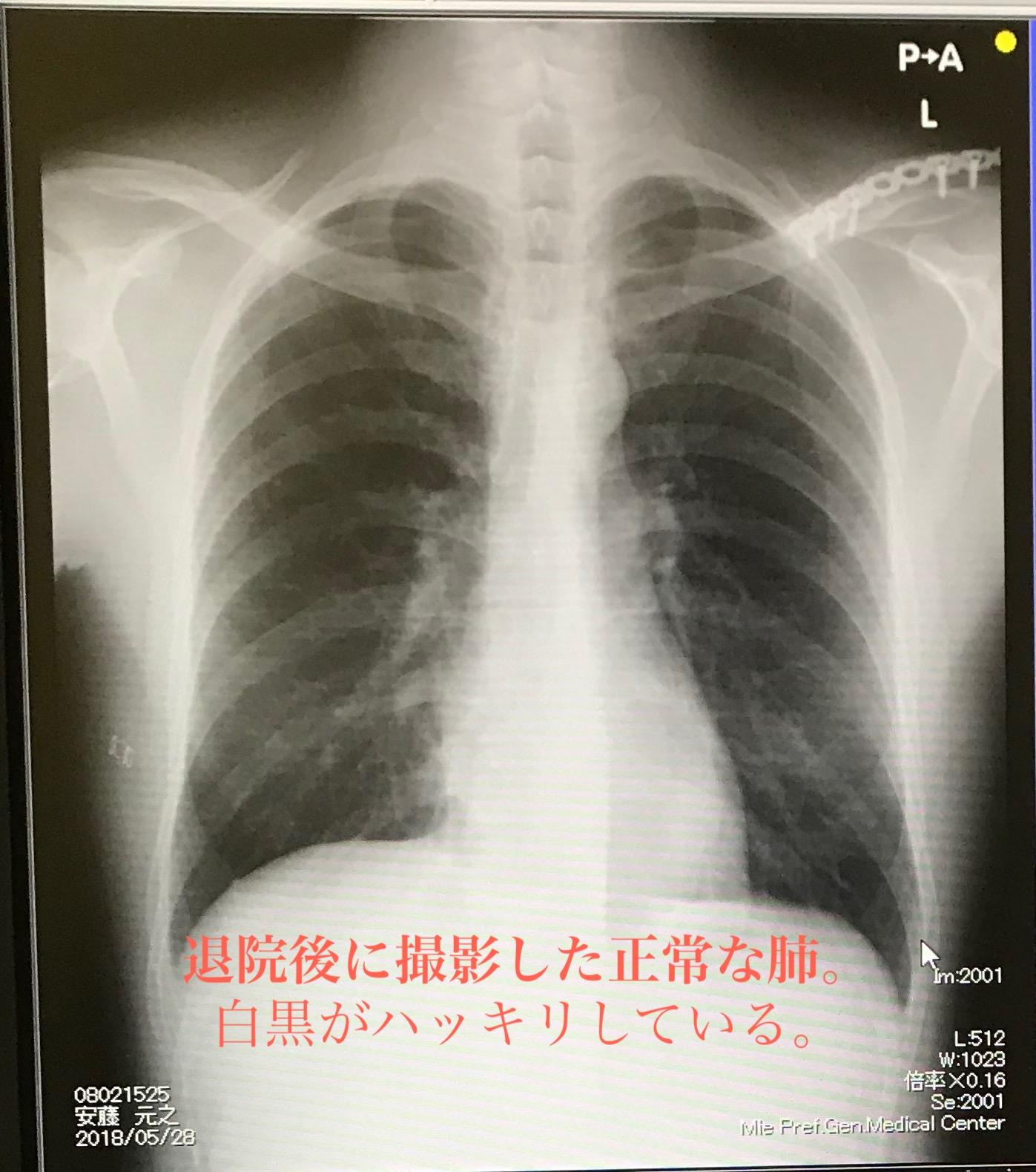 正常な肺のレントゲン写真